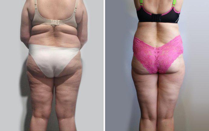Cellulite Treatment Brisbane Cellulite Removal Bulimba And Newstead